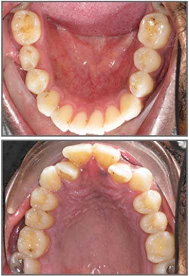 Sellers Orthodontics - Charlotte, NC Braces & Invisalign